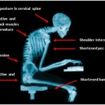 Poor posture: more damaging than you'd think!